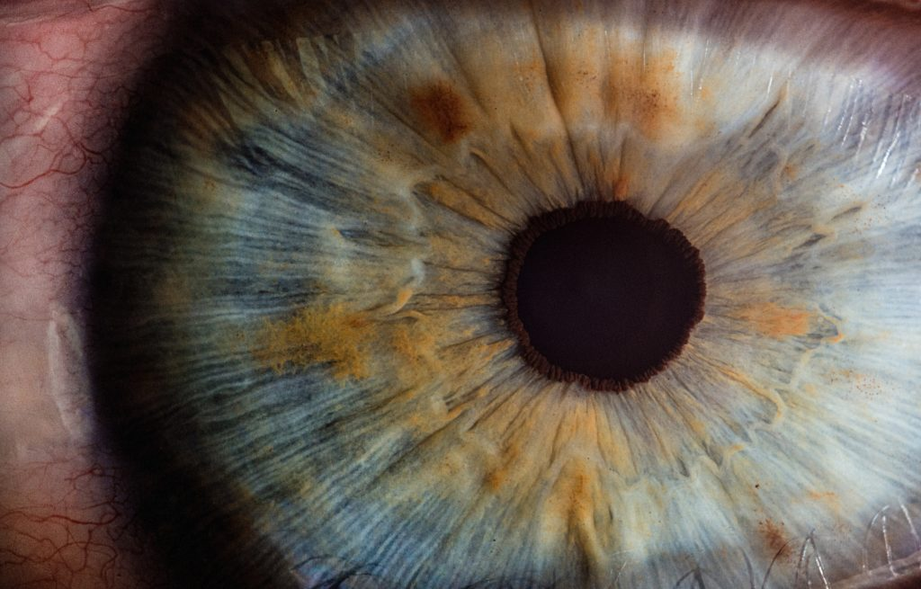 A picture of an eye ball close up